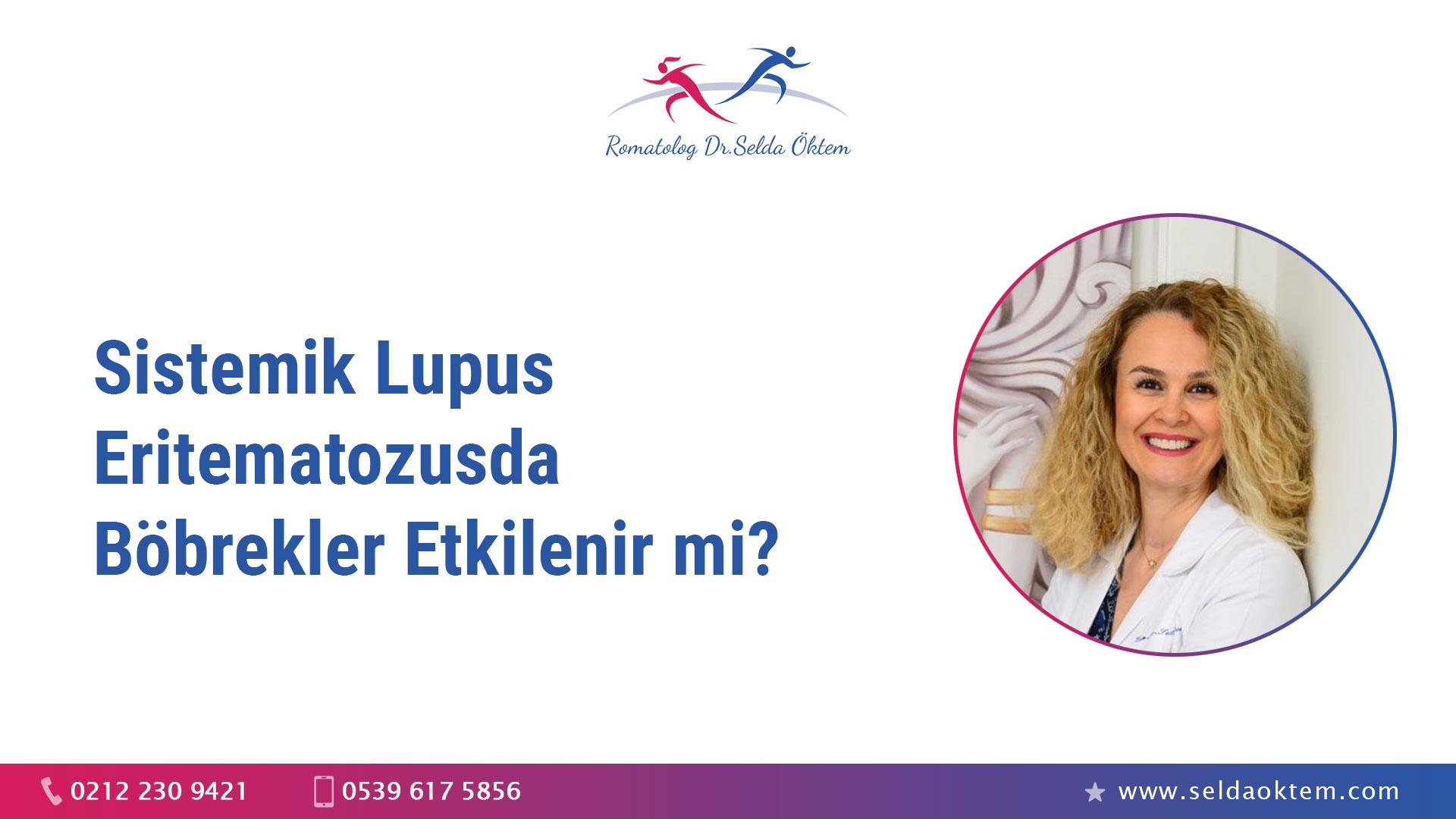 Sistemik Lupus Eritematozusda Böbrekler Etkilenir mi?